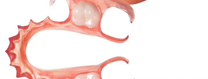 the lab partial denture