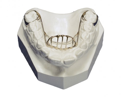tongue-crib-orthodontic-appliance