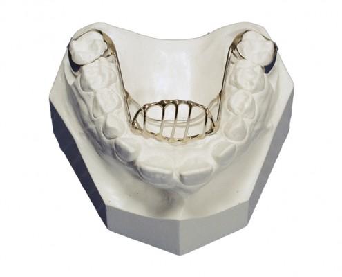 The Lab Orthodontic Appliances